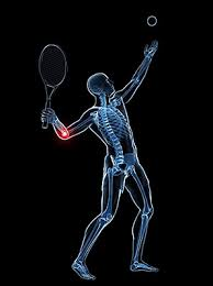 tennis elbow, آرنج تنیس بازان
